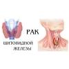 Операции опухолей щитовидной железы.  Медицинские услуги.